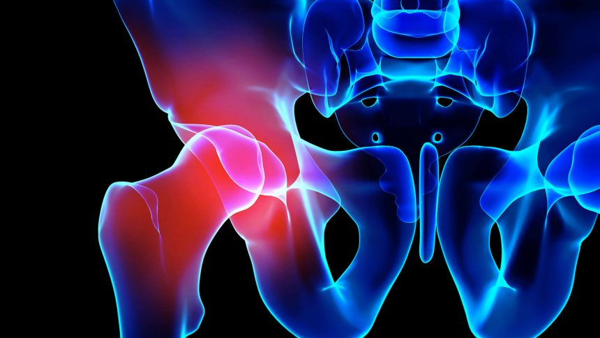 Protesi ANCA con accesso anteriore