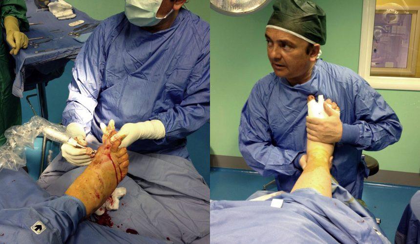 Un caso molto difficile di chirurgia del piede